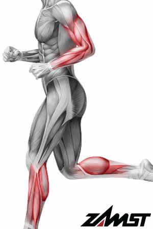 Muskelfaserriss Rücken