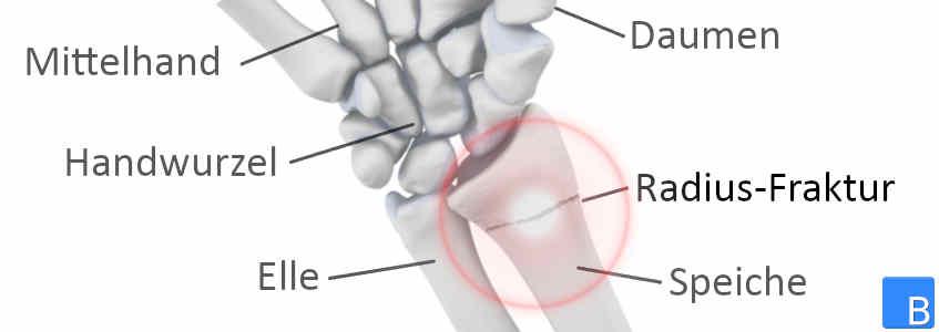 Bei sehnenscheidenentzündung gips frendycaro: Sehnenscheidenentzündung »
